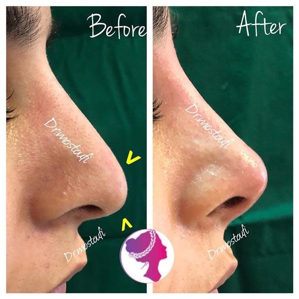 مزوتراپی کوچک کننده سر بینی بهمراه لیفت و قوسدار کردن بینی بدون جراحی