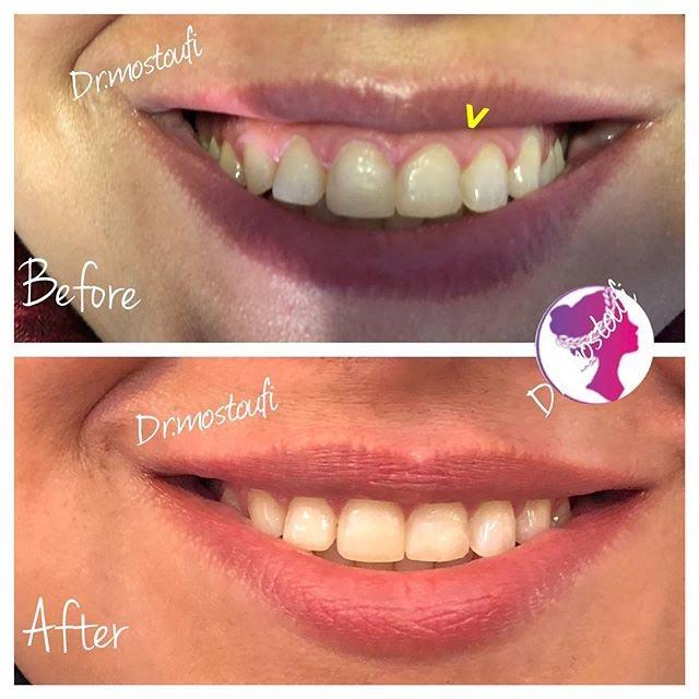 درمان گامی اسمایل(لبخند لثه ای)با تزریق بوتاکس و گاهی ترکیب بوتاکس و فیلر