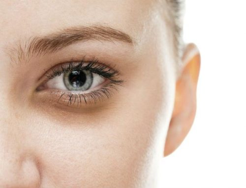 درمان تیرگی، گودی و پف زیر چشم با PRP